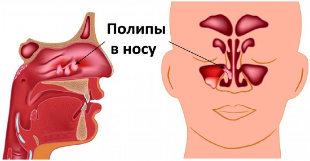 Болит горло и ухо после лечения зуба
