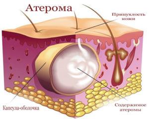 Атерома