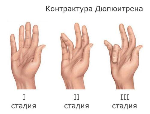Контрактура Дюпюитрена - стадии
