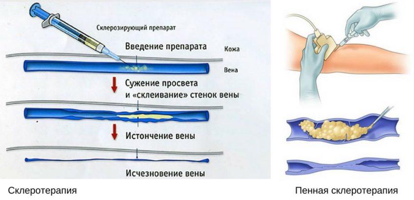 Склеротерапия в Николаеве: лекарство для лечения вен