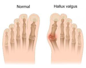 Вальгусная деформация большого пальца стопы (Hallux valgus)